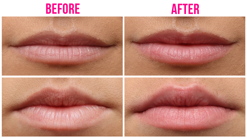 Another Lip Plumping Machine – Is This Different To All The Rest? | Blog |  HUDA BEAUTY