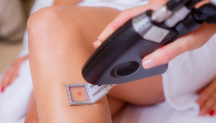 This New Laser Makes Hair Removal Virtually Painless Blog Huda