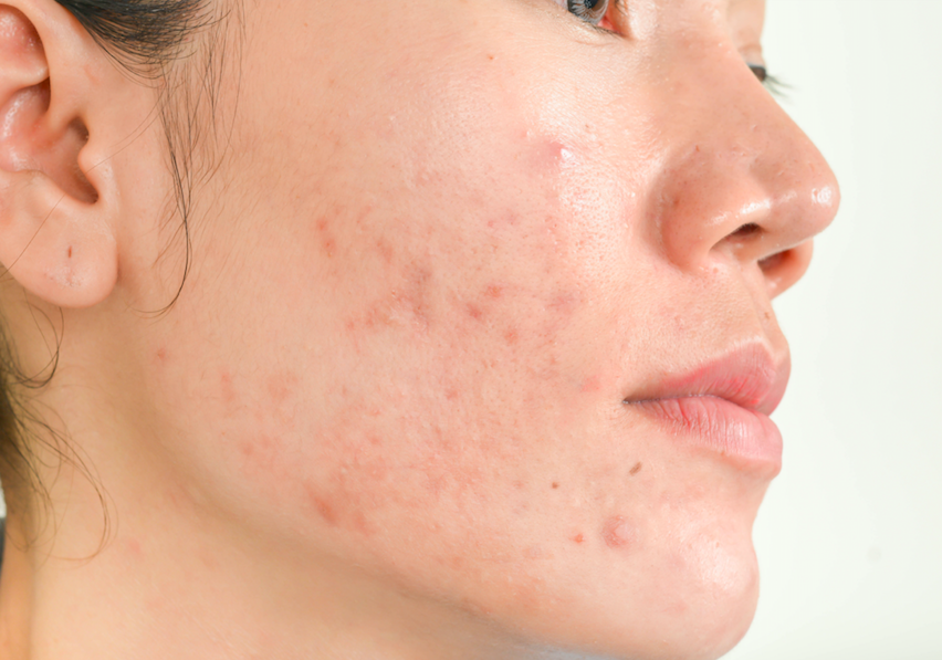 An Expert Shares 5 Things You Never Knew About Acne