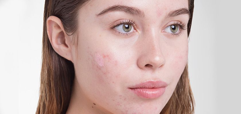 How To Treat Cystic Acne At Home Blog Huda Beauty