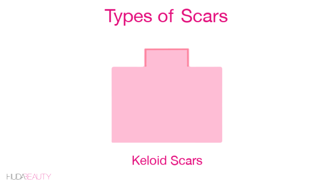 how to treat keloid scars