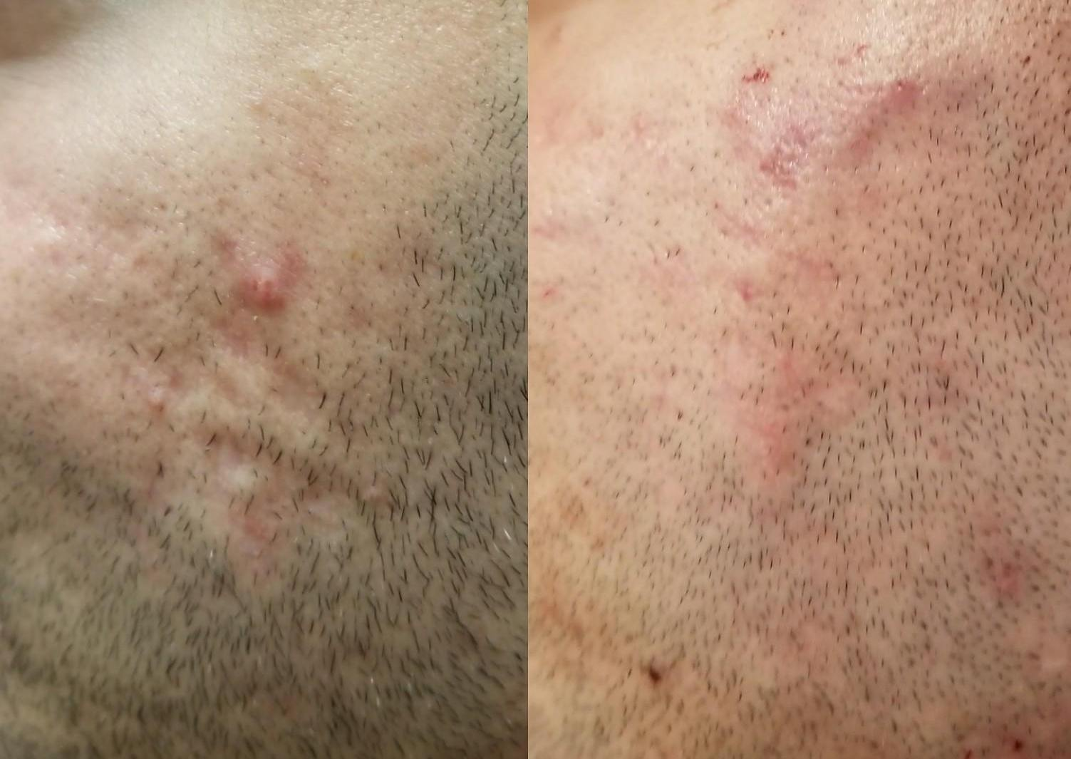 A before and after shot of thread treatment to smooth skin from acne scarring, by Dr. Doris Day.