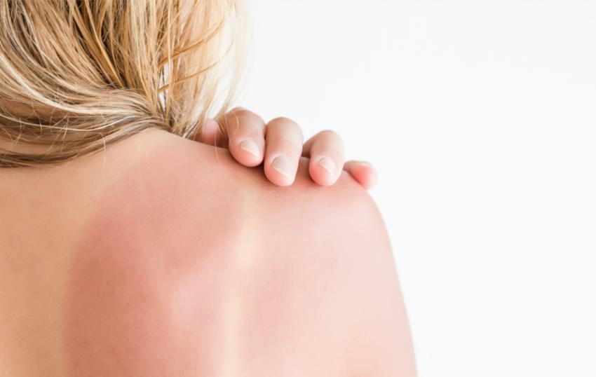 how to treat sun damage