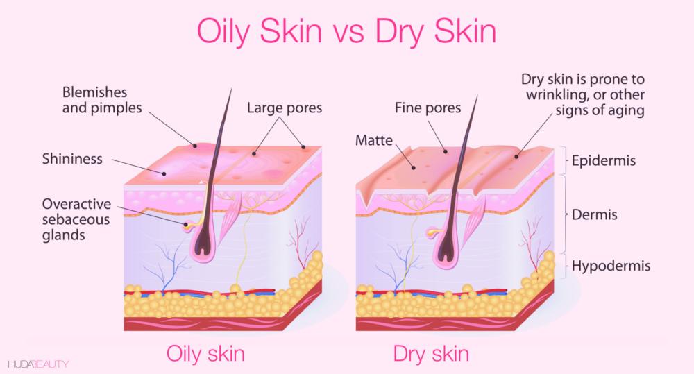 oily skin v dry skin