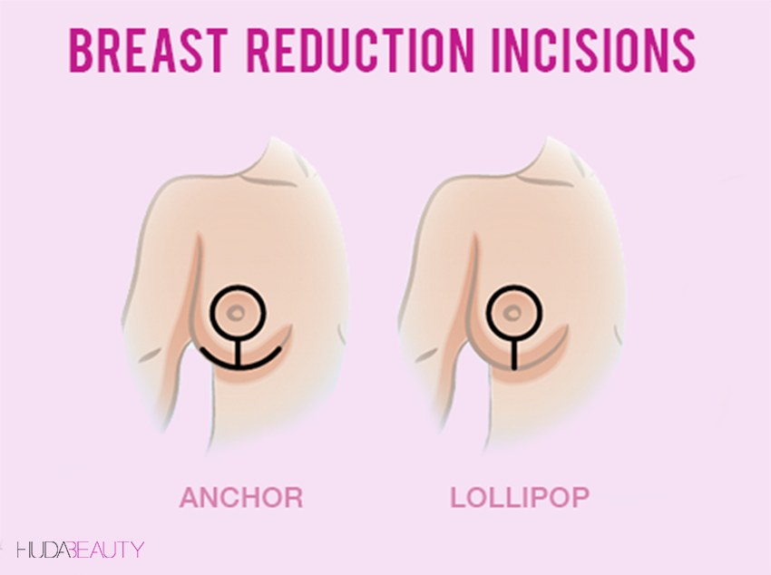 7 Things You Need To Know Before You Get A Breast Reduction Blog