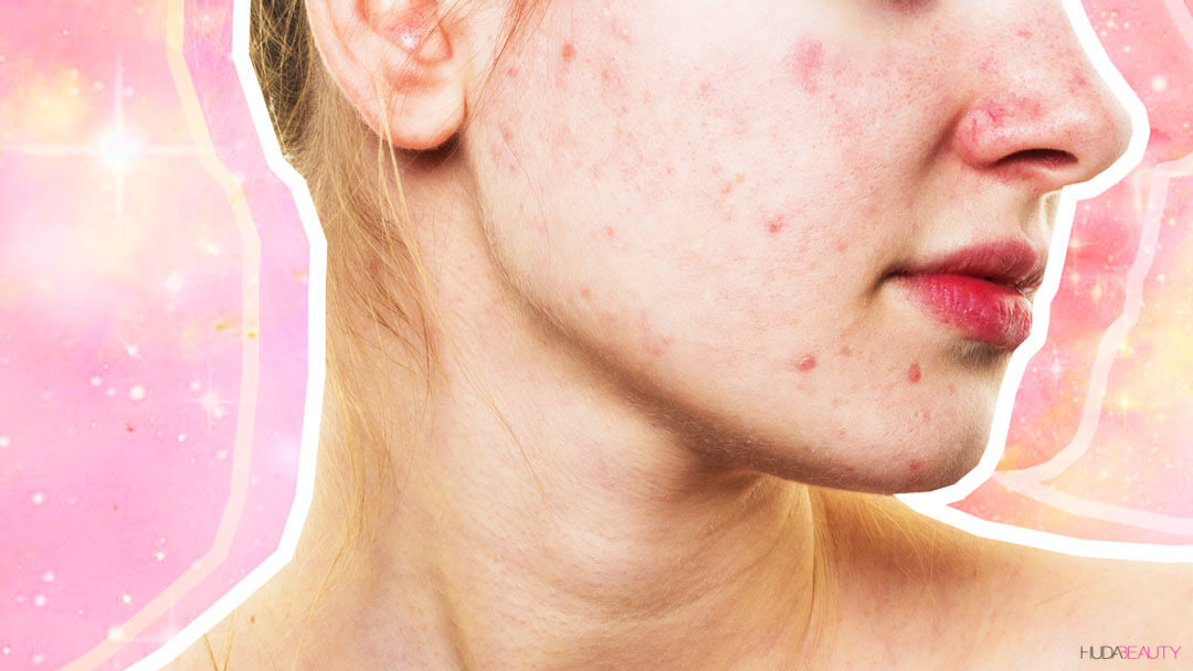 Redness-And-Sensitivity--This-Is-How-You-Soothe-Rosacea