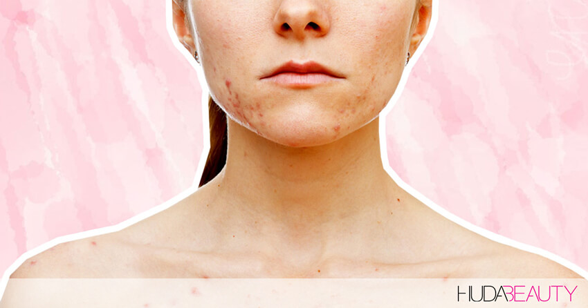 The Best Treatments For Getting Rid Of Stubborn Acne Scars Blog
