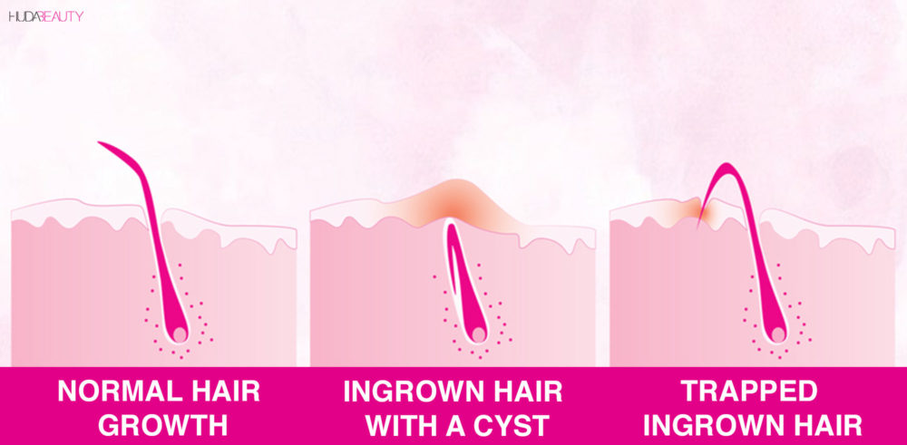 How To Get Rid Of Ingrown Hairs And The Scars They Leave Behind Blog Huda Beauty