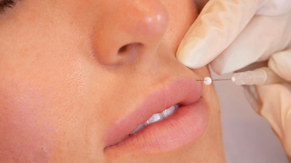 how does a lip thread lift work