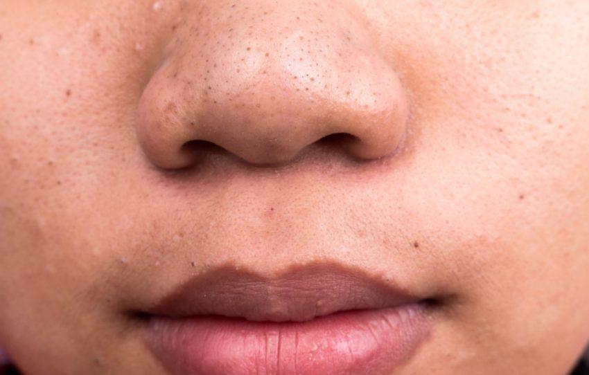 DIY pore strip
