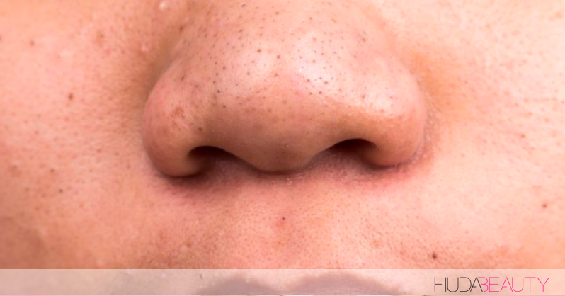 How To Degunk Your Pores Without Spending A $$