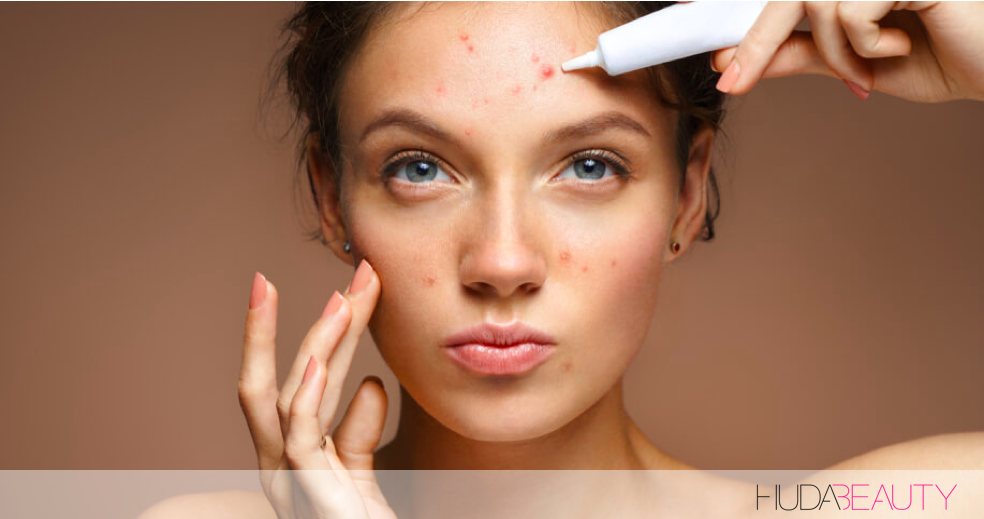 How To Banish A Pimple (In 24 Hours)