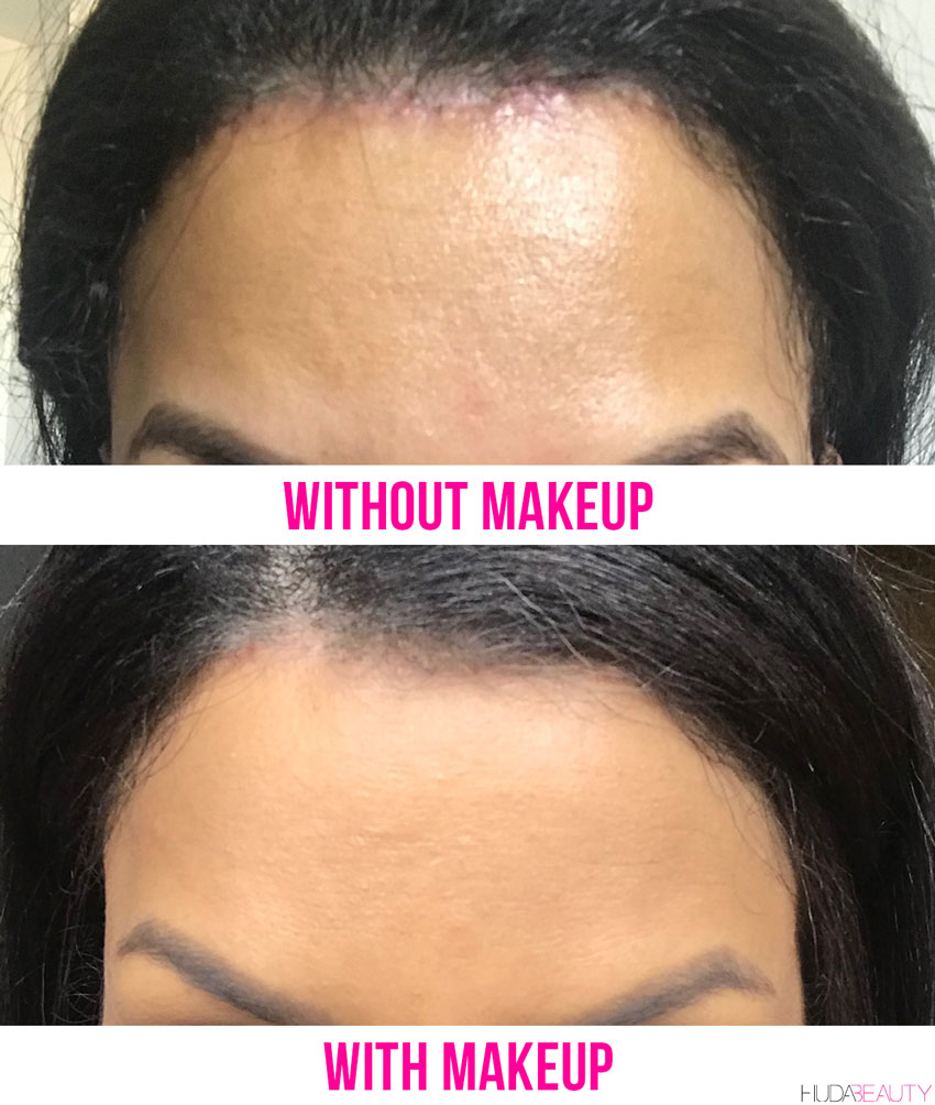 hairline-lowering surgery scarring