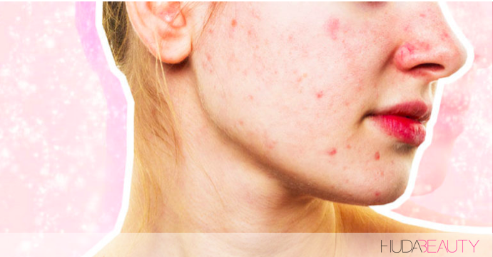 This Might Be The Reason Your Acne Won't Go Away