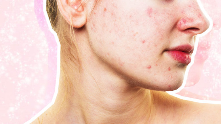 This Might Be The Reason Your Acne Won T Go Away Blog Huda Beauty