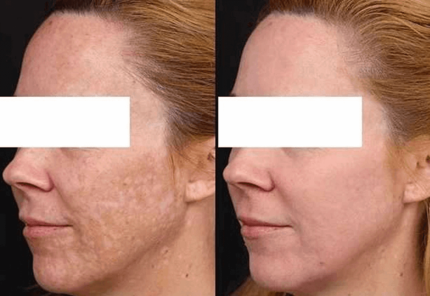 PiQo4 Laser before and after results