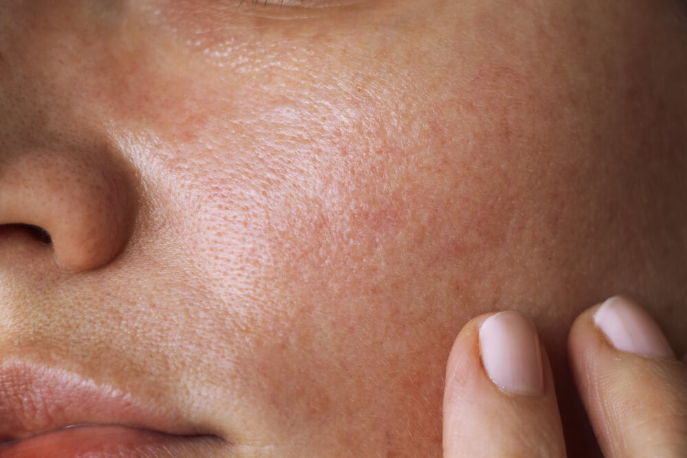 skin's pH levels
