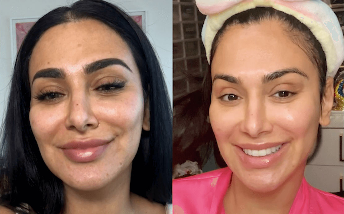 Everything I Went Through On My Skincare Journey