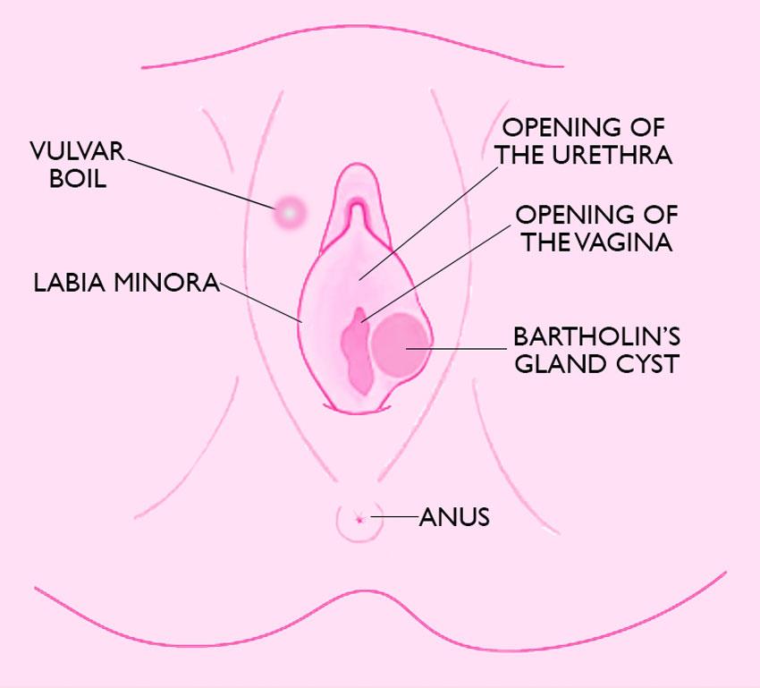 vagina boils