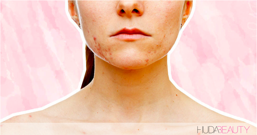 How To FINALLY Decode Your Acne & Find The Best Treatment For You