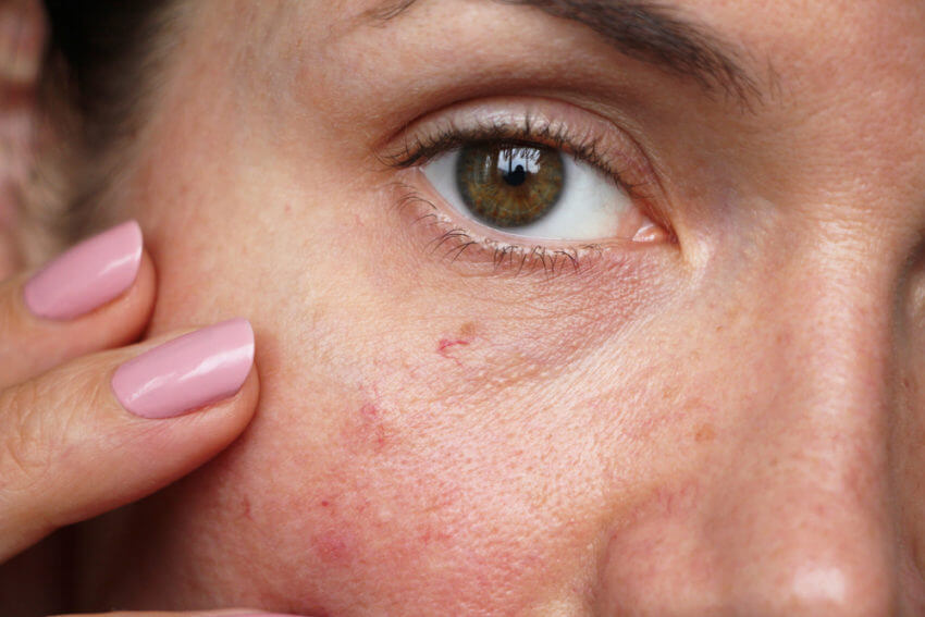 spider veins on face