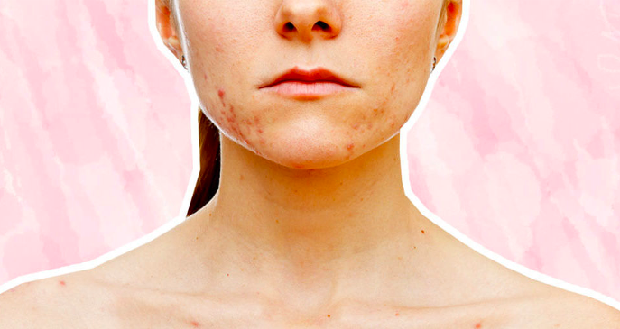The Lowdown On Hormonal Acne And How To Treat It