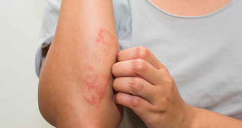 What Causes Eczema And How To Treat It Like A Derm