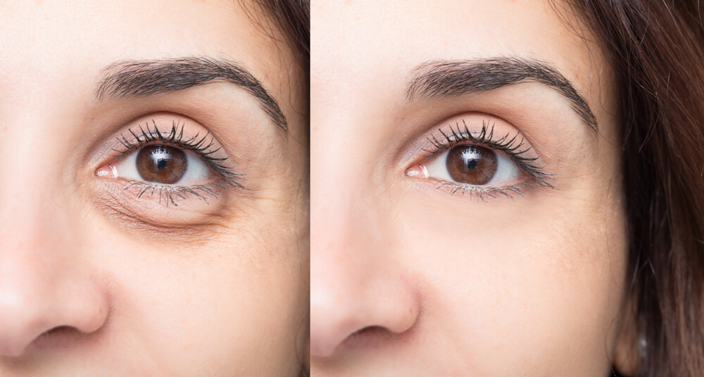 Undereye Filler And How To Tackle Undereye Hollowness