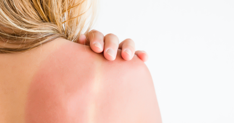 Easy DIYs And Products To Instantly Soothe Sunburn