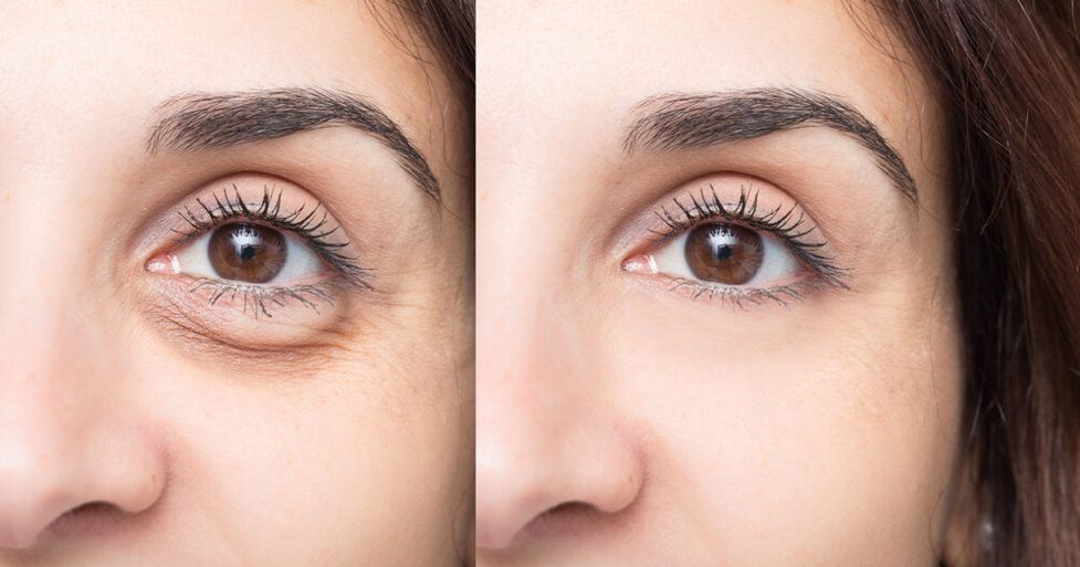 It's All About The Eyes! Here's Your Guide To The Best Eye Treatments