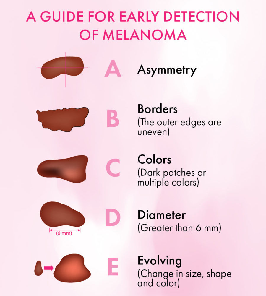 Guide-to-Detecting-Melanoma