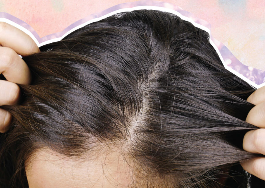 Signs Of An Unhealthy Scalp And What to Do About It