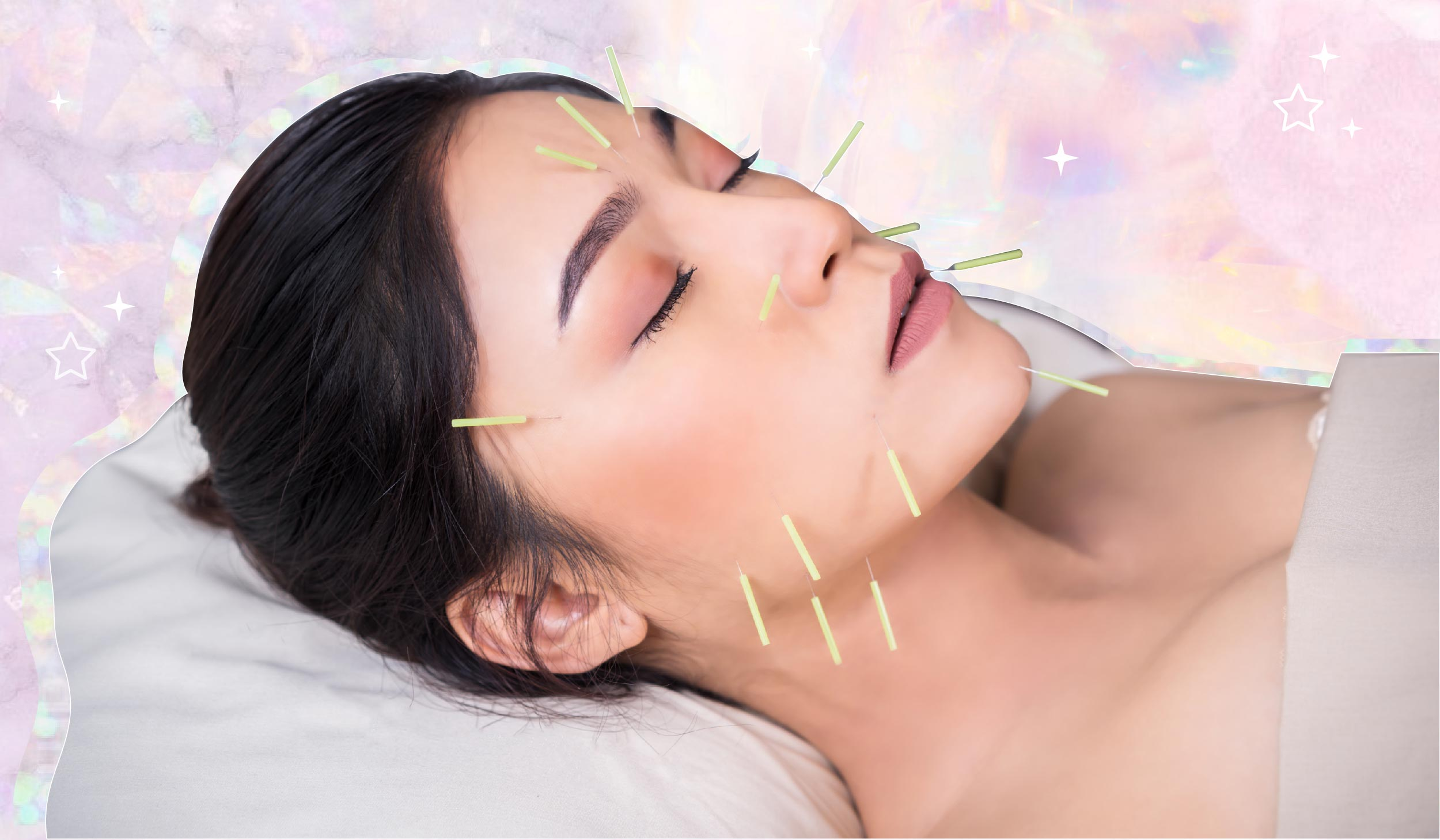 The Beauty & Health Benefits Of Acupuncture According To Experts