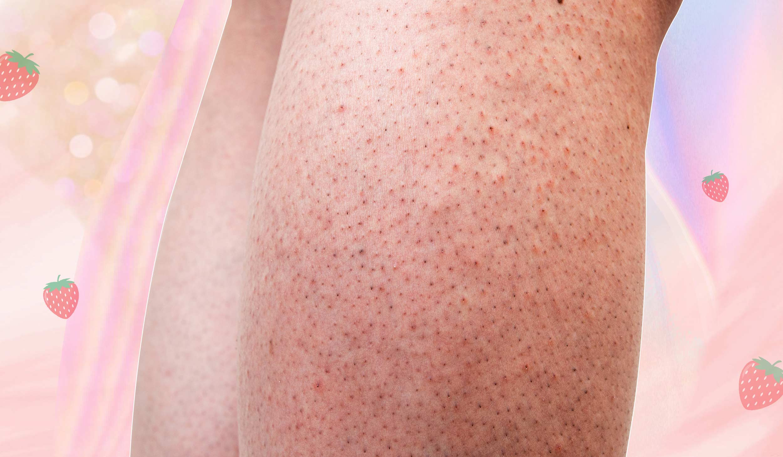 Strawberry Legs: What Those Tiny Dots Are & How To Get Rid Of Them